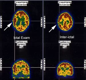 SPECT Scan for Pediatric Epilepsy Childrens Pittsburgh